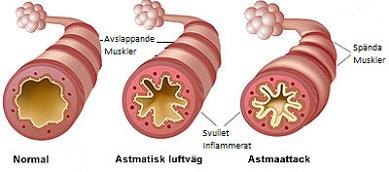läkemedel vid astma