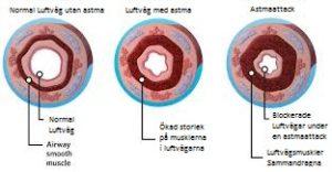 astma6